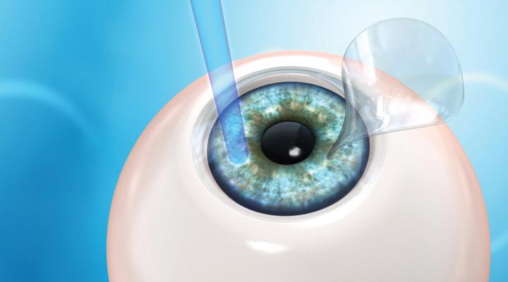 chirurgie restaurativă a ochilor)