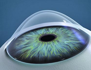 teste de examinare a vederii ce înseamnă dacă viziunea este 1