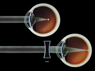 manga pentru vedere tulburare de vedere vizuală